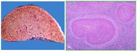 肝小叶结构和血液循环途径