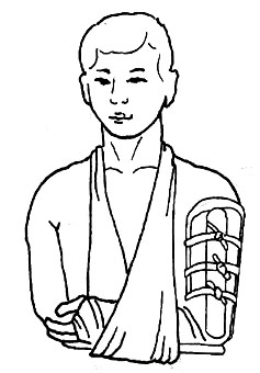 (三)骨折临时固定法  1.